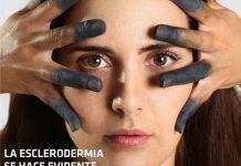 esclerodermia #Yotambien